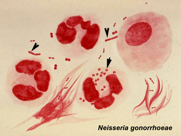 Photomicrograph of N. gonorrhoeae (arrow) within a neutrophil